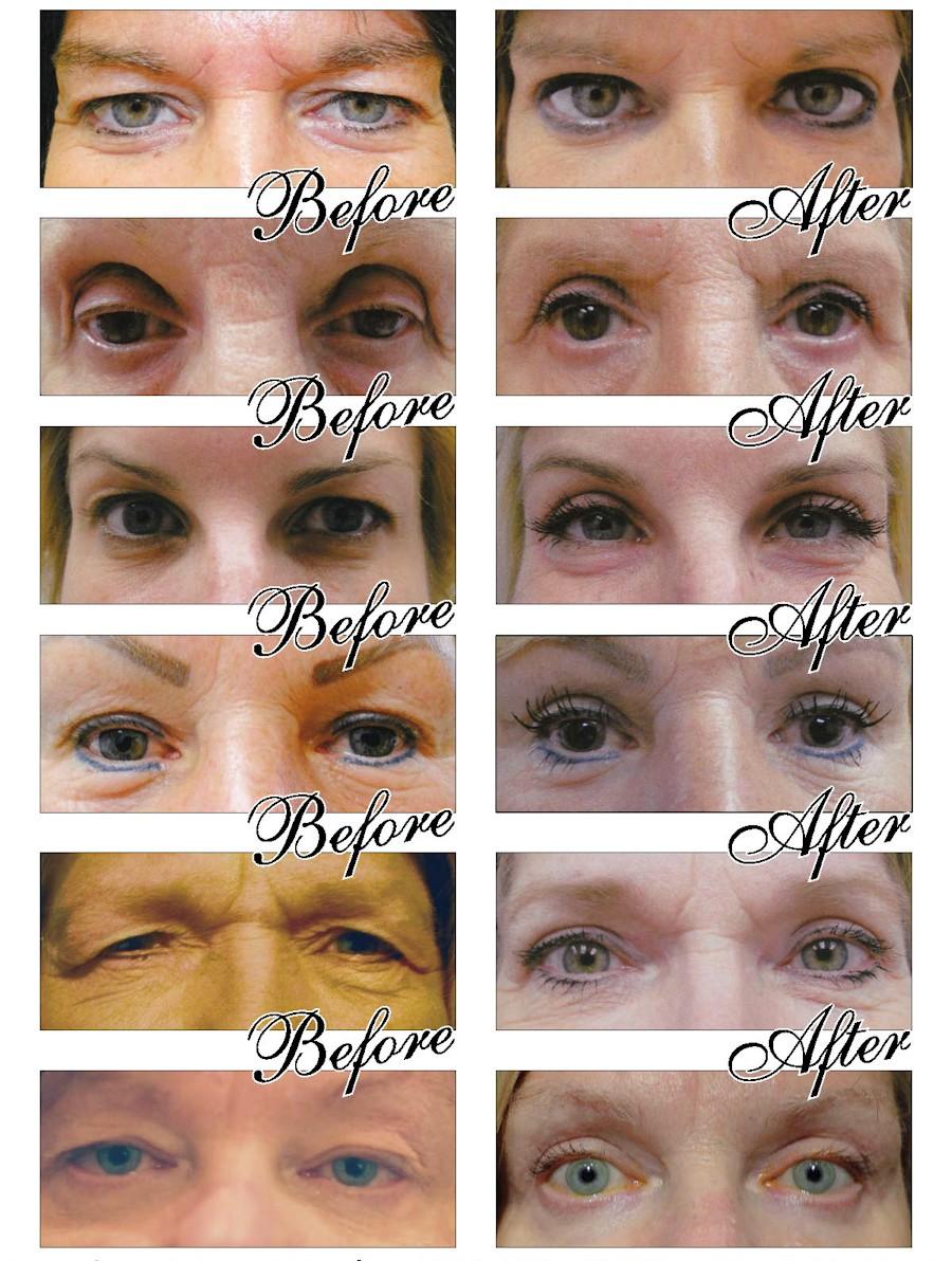 Luna Vision and Med Spa - Laser Eye Lifts and Blepharoplasty