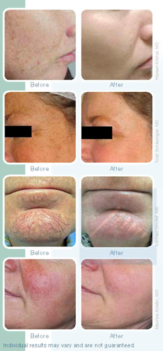 Photo-Rejuvenation R.M. Dutt MD Luna Vision and Laser