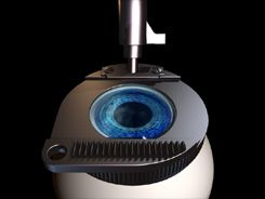 LASIK  R.M. Dutt MD Luna Vision and Laser