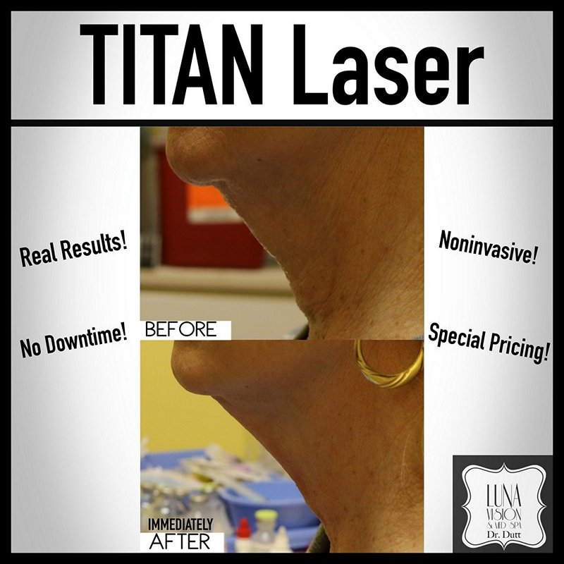 Pittsburgh Titan Laser Treatments